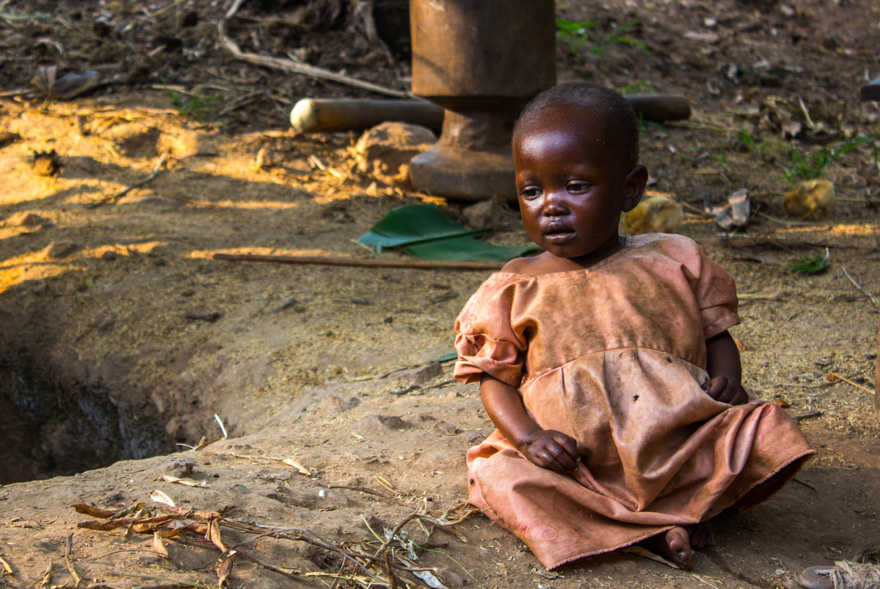 Young girl with malnutrition