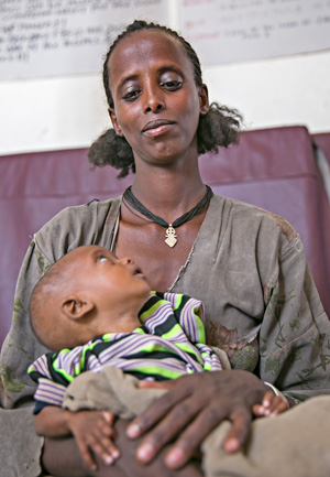 Kelebet and her malnourished child in Ethiopia