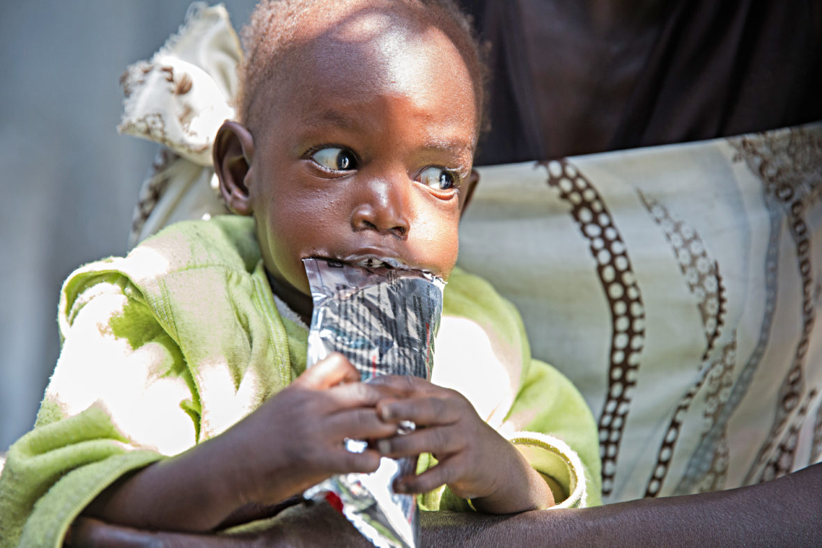 Malnourished baby in Unity State South Sudan