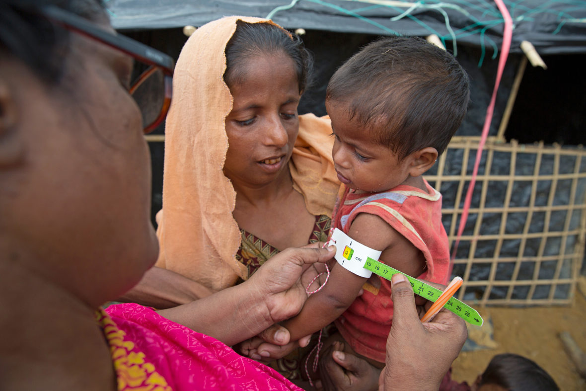 A young child is screened for malnutrition in Bangladesh.