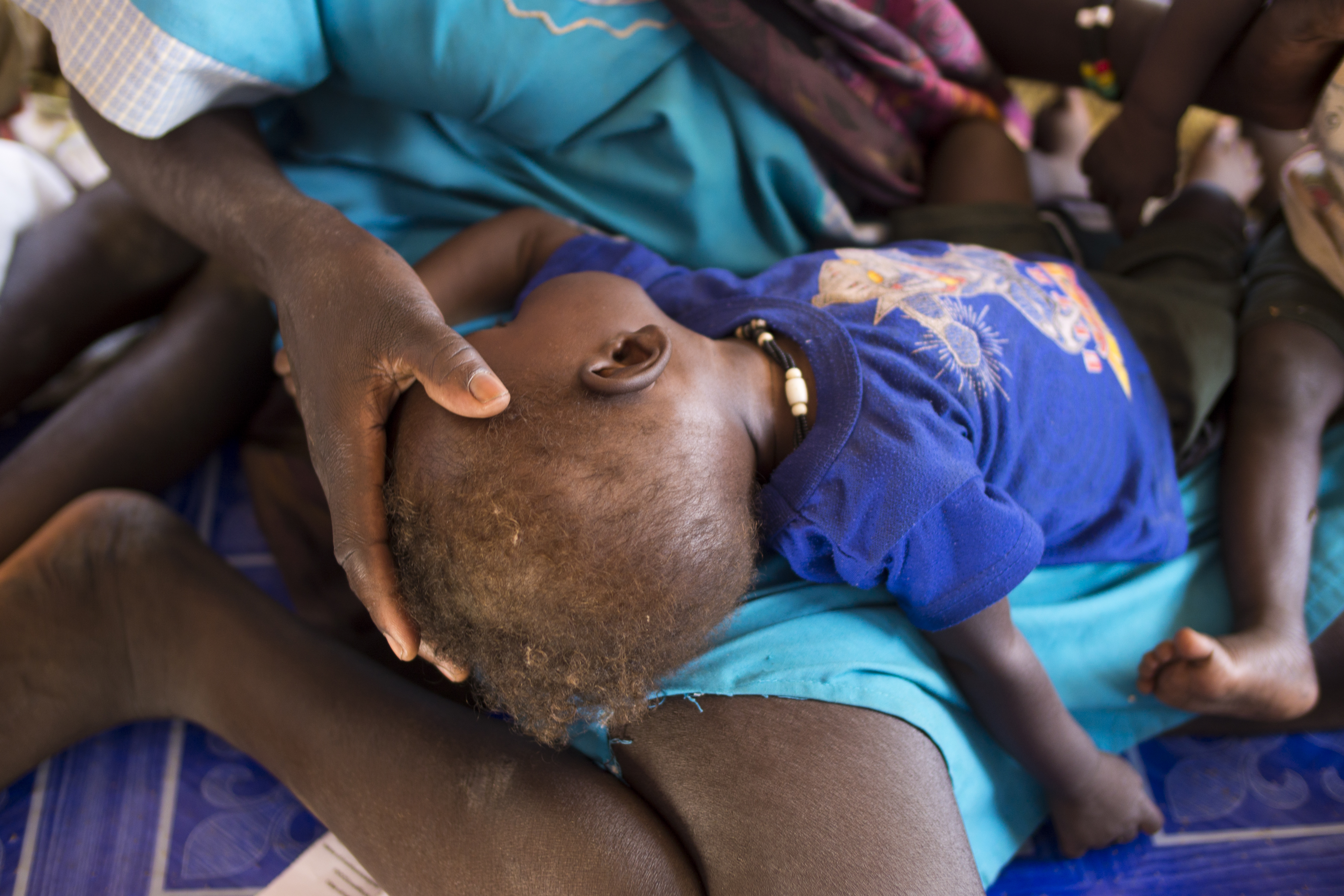 Dit, aged 8 months, at the Concern nutrition center in the Protection of Civilians (POC) site at the UN base in Juba, South Sudan.