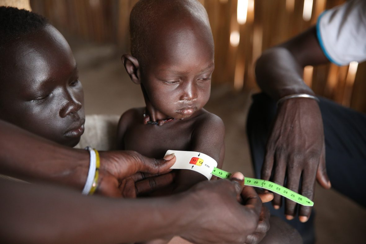 Young boy being screened for malnutrition