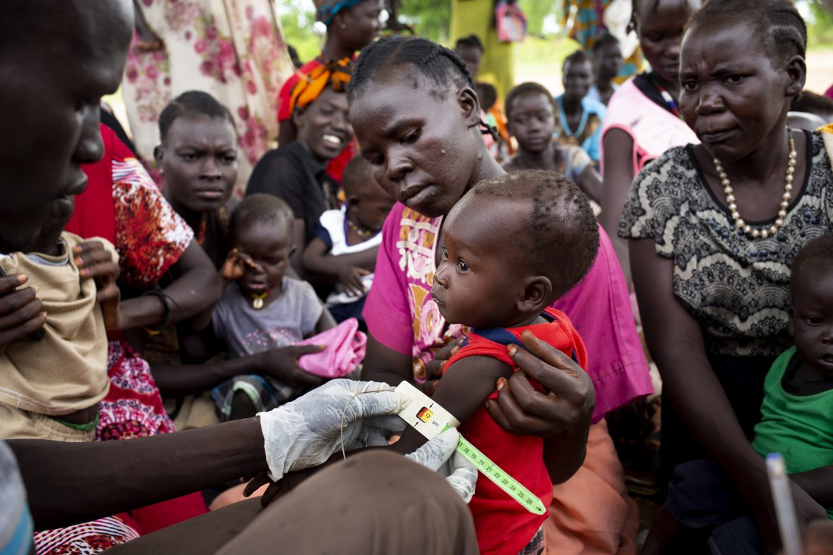 Nutrition clinic in South Sudan
